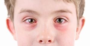 Bahar Alerjileri En Çok Çocukların Gözlerini Etkiliyor