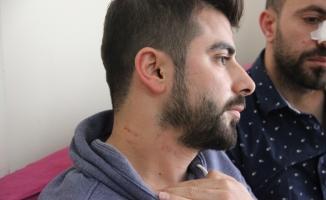 Hasta yakını erkek hemşirenin burnunu kırdı
