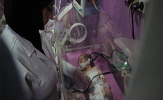 Yer altında ameliyatla kurtarılan bebeği kuşatma öldürdü