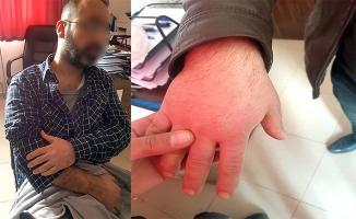 Dicle Elektrik Çalışanlarına Saldıranlardan Biri Tutuklandı