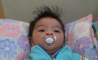 Altı aylık bebeğin zorlu yaşam mücadelesi