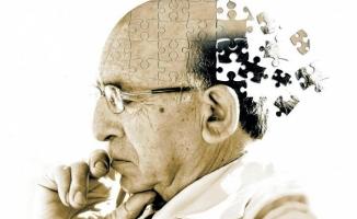 Alzheimer beyne 25 yıl öncesinde yerleşiyor!
