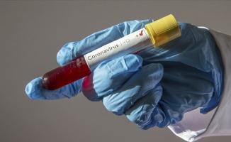 Koronavirüste detaylı tablo açıklandı