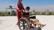 Akçakale'de engelli çocuğun engeli kaldırıldı